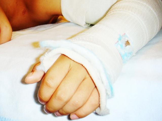 知らないと恥ずかしい体の雑学と骨折の治る期間をランキングで紹介